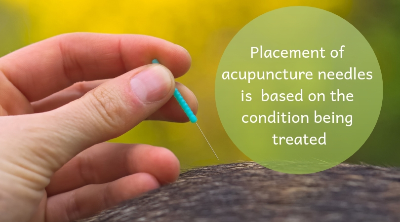 Photo of an acupuncture needle being held next to a dog